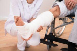 doctor holding patient's broken leg in a cast