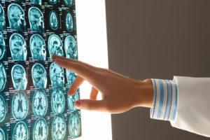 brain-injuries